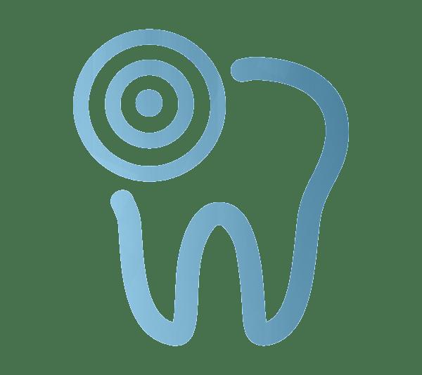 Dentista Terrassa - Endodoncia